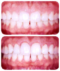 cosmetic dentist Friendswood for cosmetic dental work Pearland