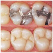 white fillings Friendswood dentist Pearland