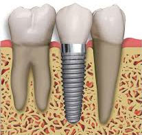 tooth implant dentistry