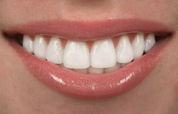 prepless veneers for teeth Friendswood and Pearland